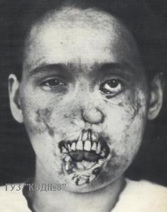 проявления третичного сифилиса